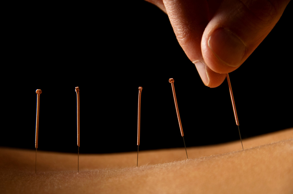 Awaken Your Chi with the Best Acupuncture in Mississauga!