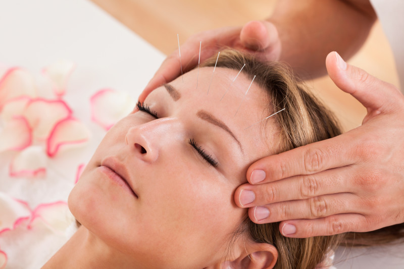 Guaranteed Safe and Effective Acupuncture Services in Ajax