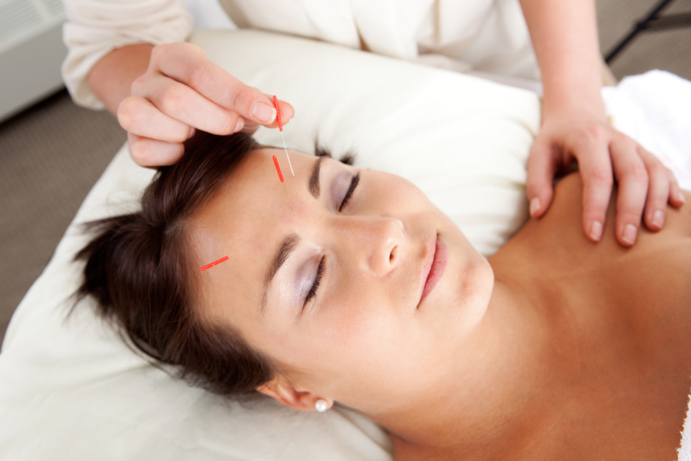 The Acupuncture in Scarborough by the Physiotherapy and Rehabilitation Centers