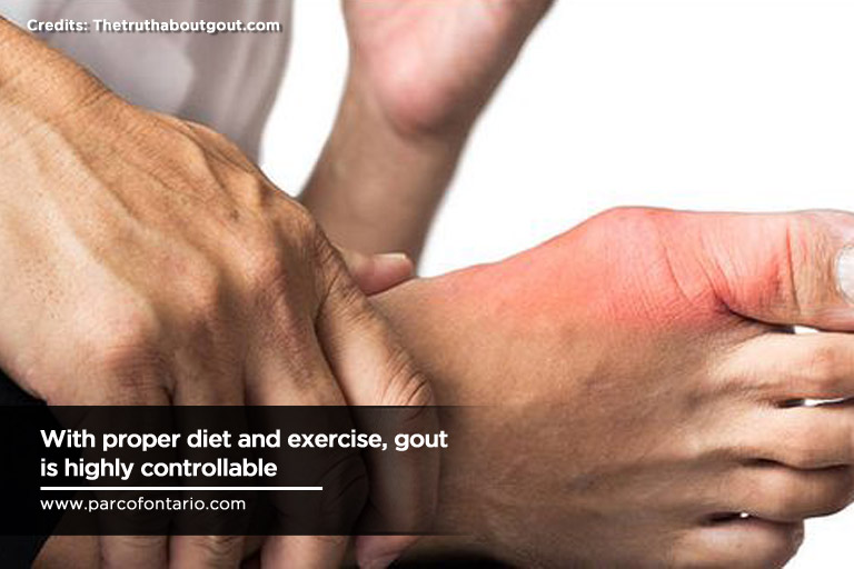What Men (And Women) Need To Know About Gout | The