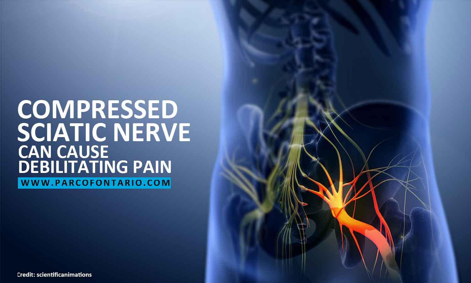 Can Acupuncture Relieve Sciatica Pain? | The Physiotherapy ...